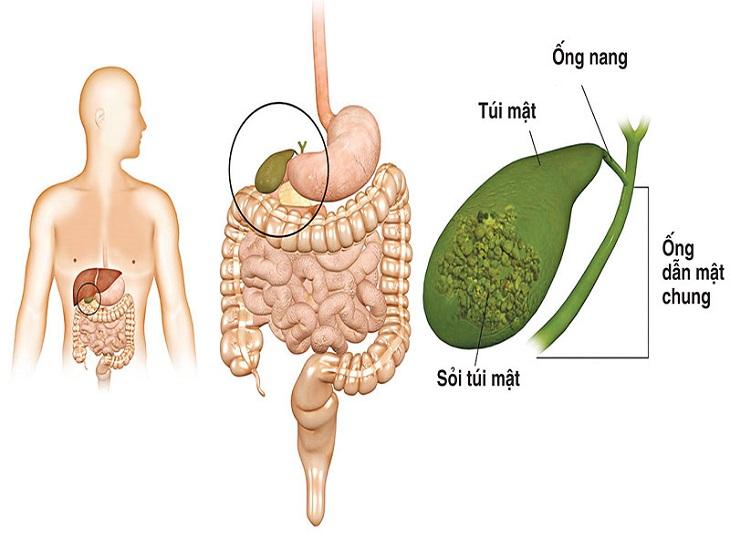 Viêm túi mật cấp là biến chứng nguy hiểm của bệnh sỏi mật